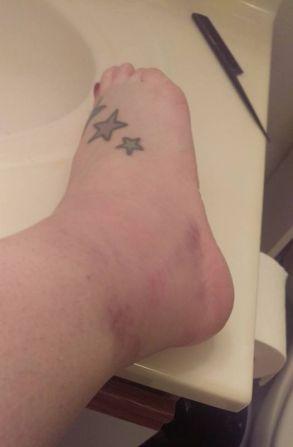 bad-sprain-1